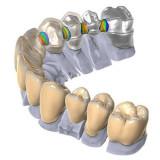 Модуль Exocad DentalCAD