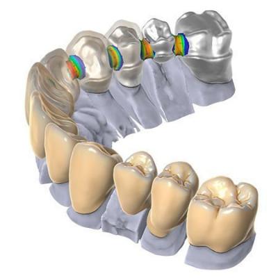 Модуль Exocad® DentalCAD