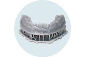 Ортодонтическая и диагностическая модель: 15€
