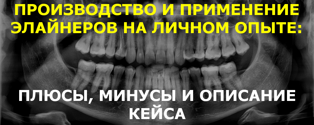 aligners-4-dentists_bnnr.png