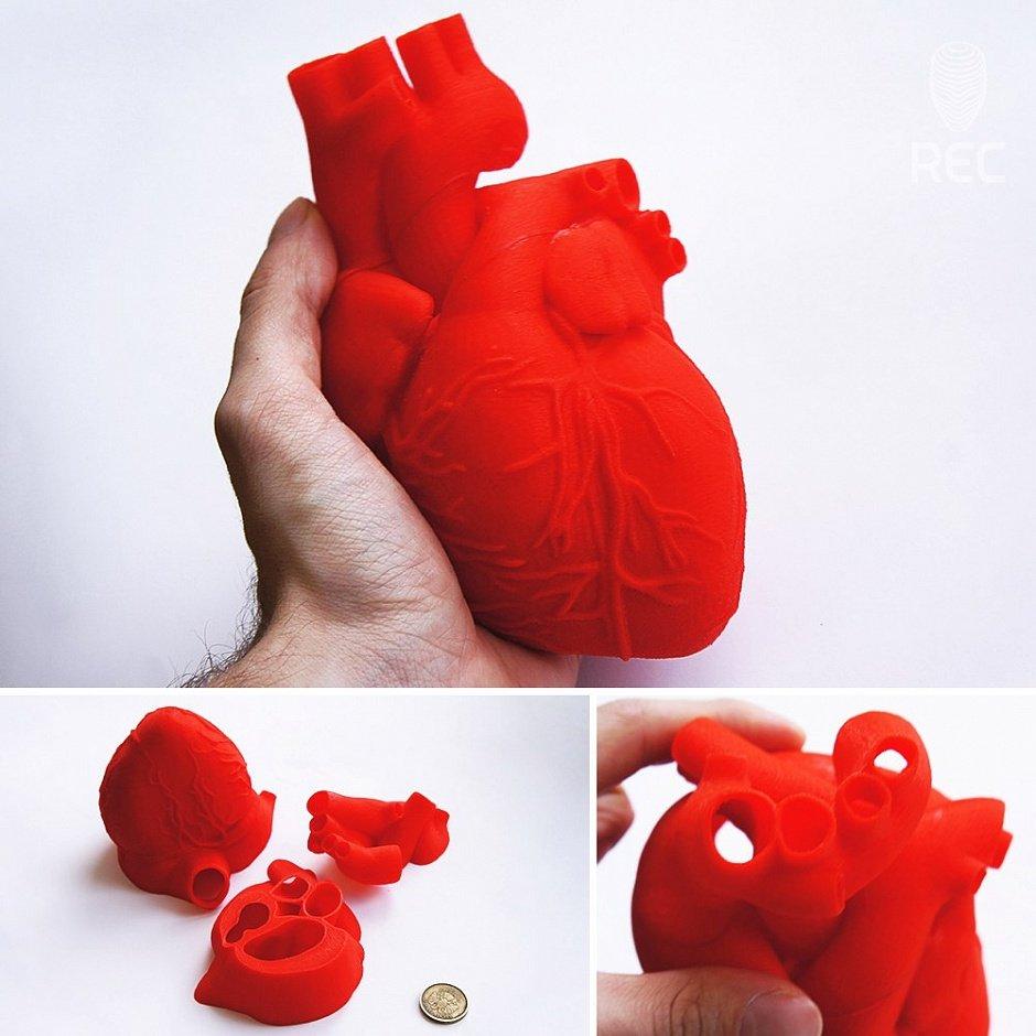 Модель сердца человека, распечатанная на 3D-принтере