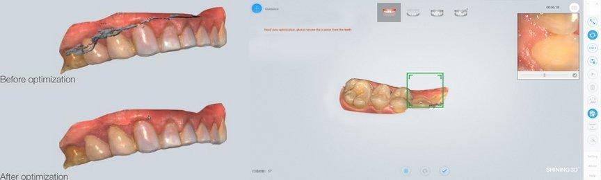 3D сканер Shining Aoralscan